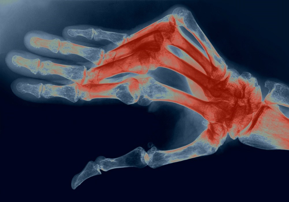 Rheumatoid Arthritis May Increase HF Hospitalization Risk