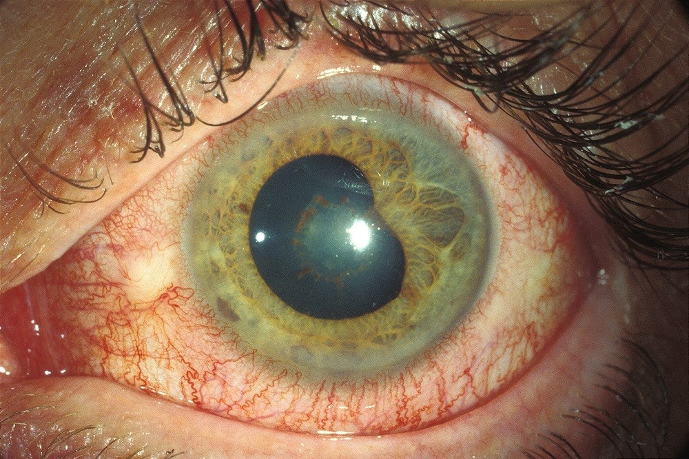 Acute Anterior Uveitis Incidence Reduced With Golimumab in Ankylosing Spondylitis