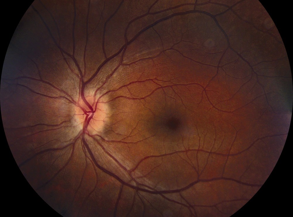 Ocular Complication Rates Improved With Biologic Use in Noninfectious Pediatric Uveitis