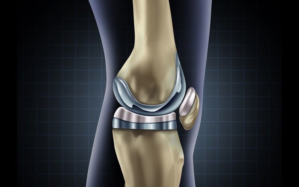 The findings of this study highlight the need for programs that are designed to decrease disparities in joint replacement use among various populations.