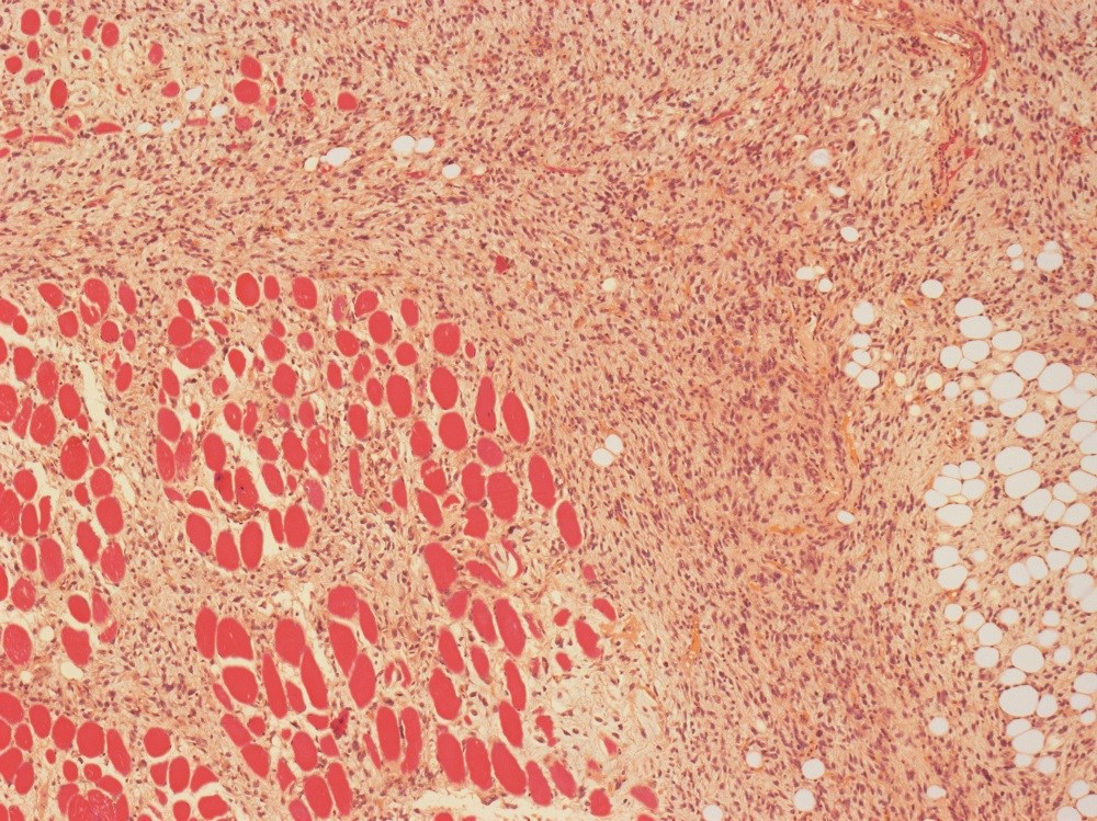 More Severe Disease Found in Juvenile Myositis With Anti-NT5C1A Autoantibodies