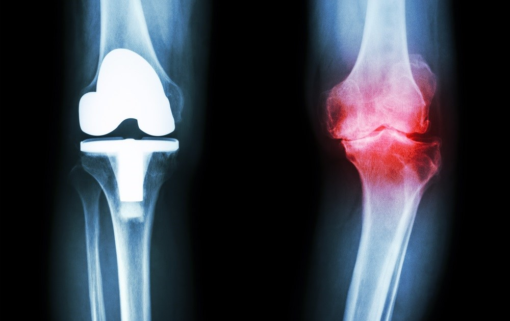 Risk for Total Knee Arthroplasty Elevated in Ankylosing Spondylitis