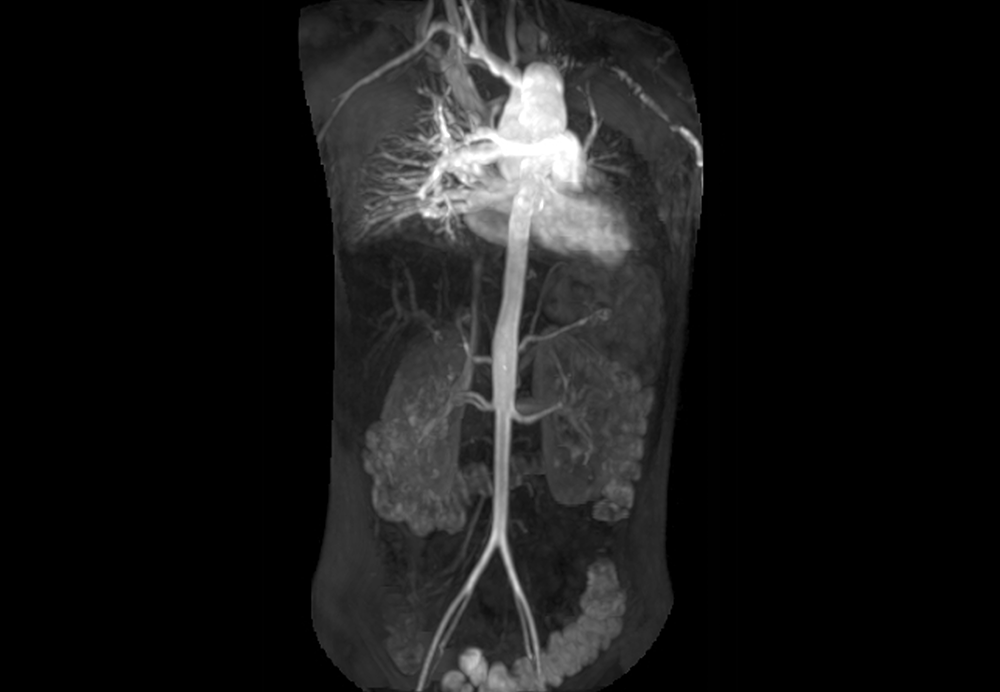 EULAR has developed 12 evidence-based recommendations for the use of imaging in the diagnosis and monitoring of large vessel vasculitis. <i>Photo Credit:ISM / SOVEREIGN</i>
