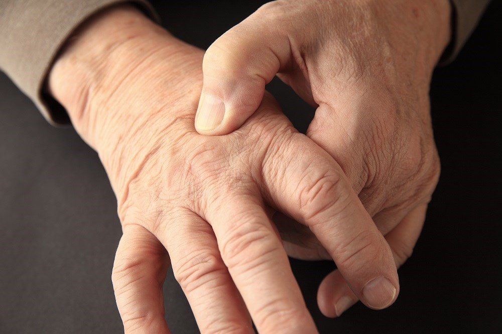 Hand Osteoarthritis Symptoms Not Reduced With Hydroxychloroquine