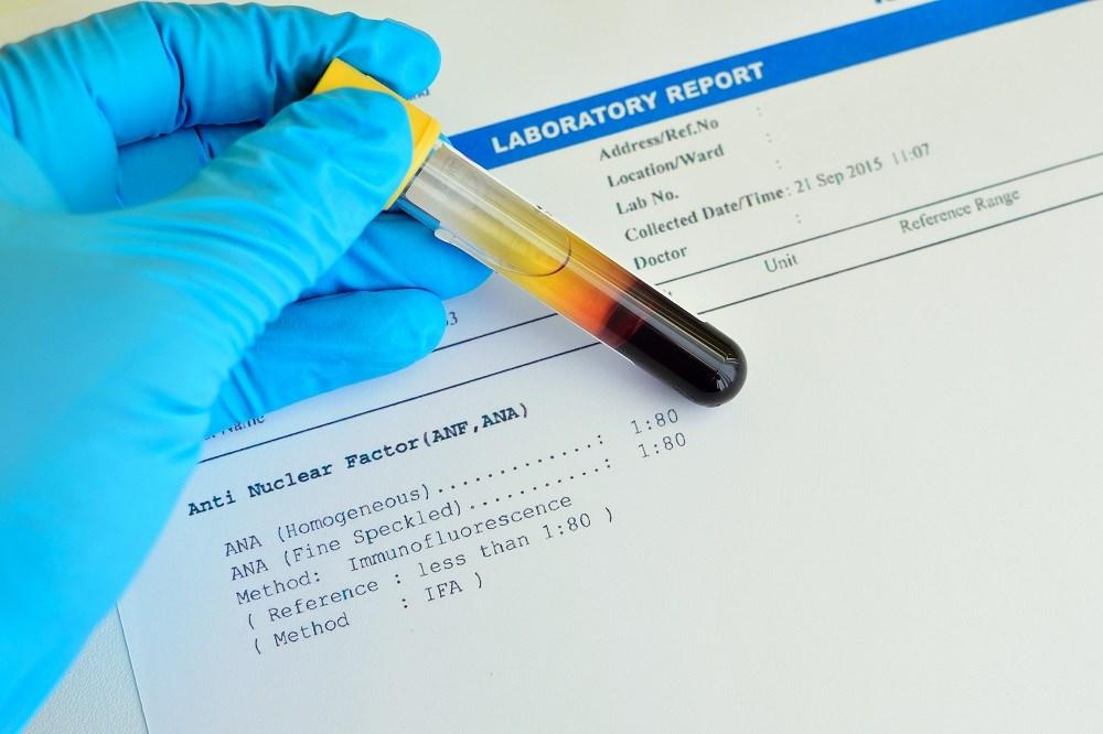 Diagnosis of Rheumatoid Arthritis May Vary According to Specific Assay Used