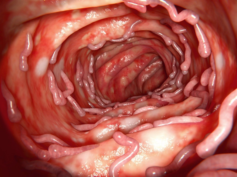 Novel Biomarkers May Identify Axial Spondyloarthritis in Patients With IBD
