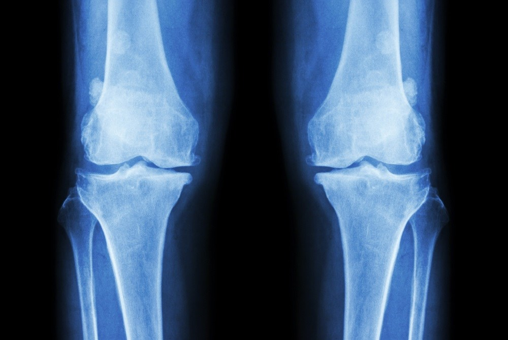 Radiographic knee osteoarthritis is associated with an increased risk for mortality from cardiovascular disease, diabetes, and renal diseases, but self-reported OA is not.