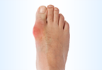 High Gout Burden Found Among Solid Organ Transplant Recipients