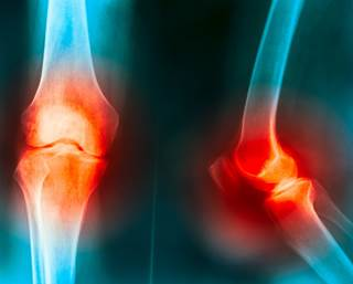 efficacy of colchicine for the reduction of symptoms in knee