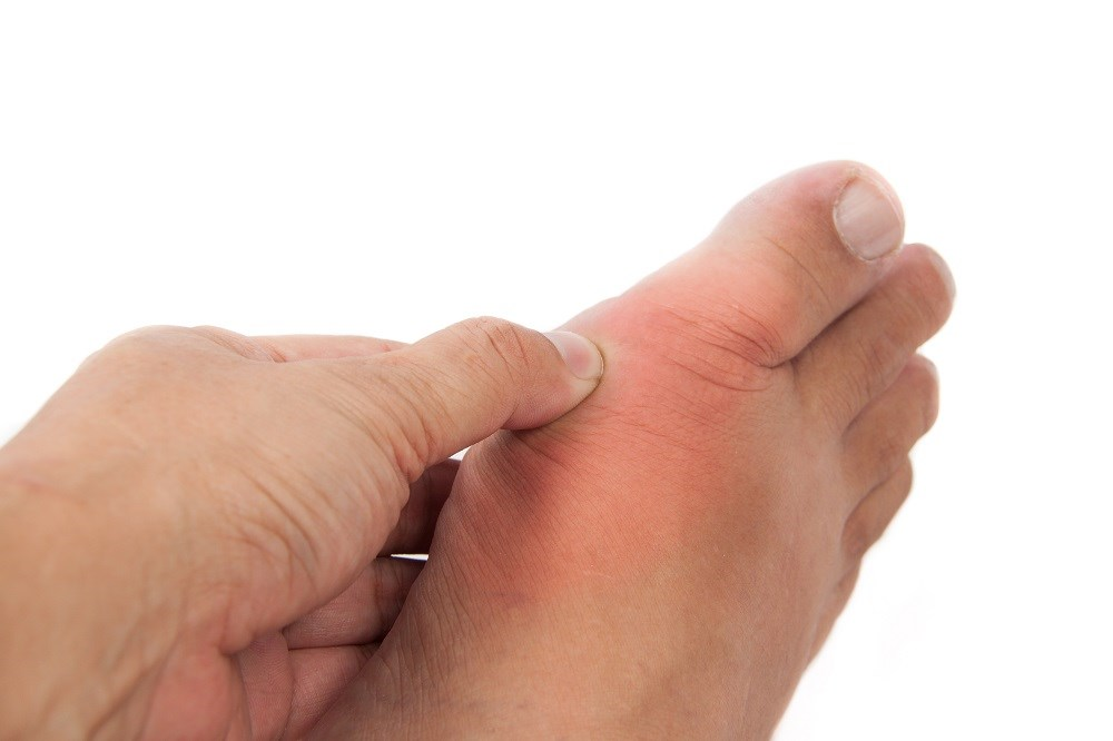 Febuxostat vs Allopurinol Evaluated in Patients With Gout, CVD