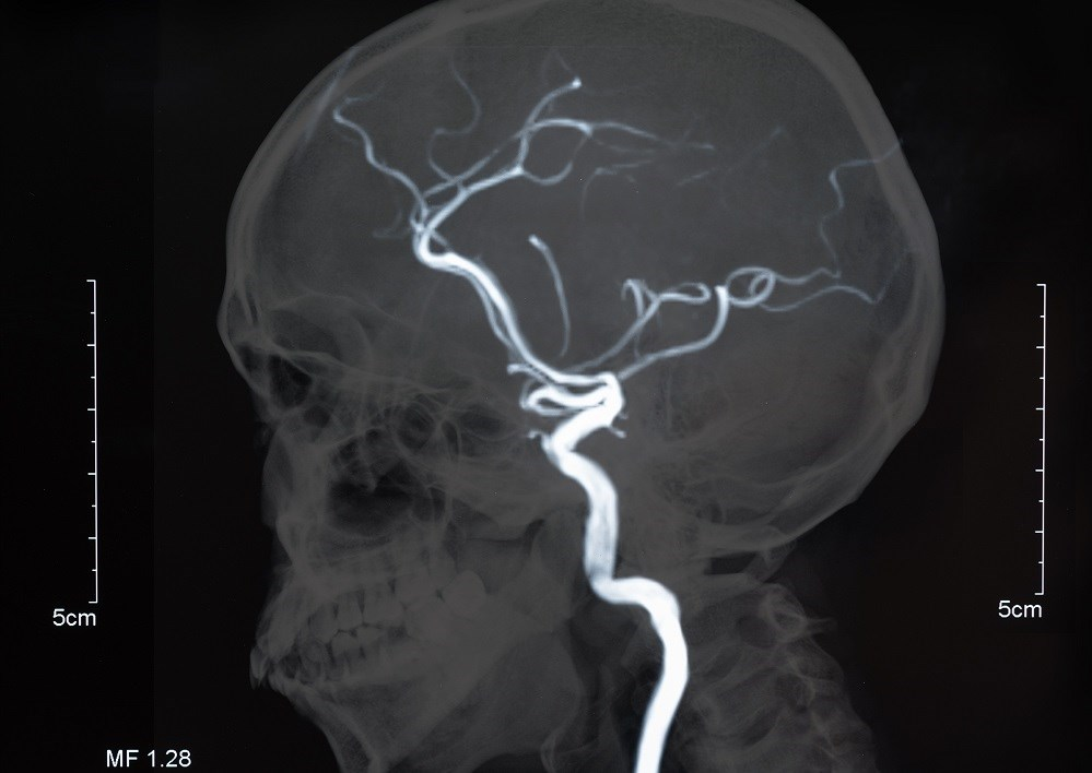 There may be a lower risk for ischemic stroke in patients with RA receiving methotrexate.