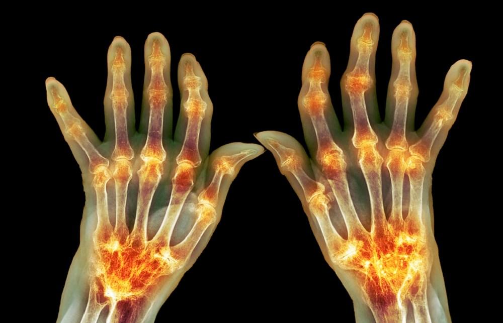 Sirukumab Effective in Rheumatoid Arthritis Refractory to Methotrexate or Sulfasalazine