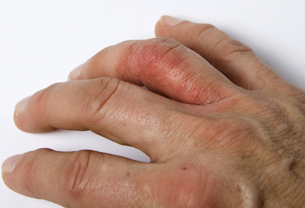 Physician's Global Assessment Reliable for Evaluating Disease Activity in Psoriatic Arthritis