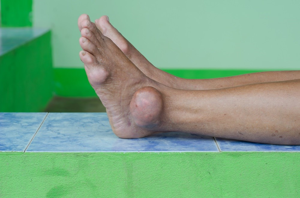 Among OSA patients, risk for developing gout is highest 1 to 2 years after the index date.