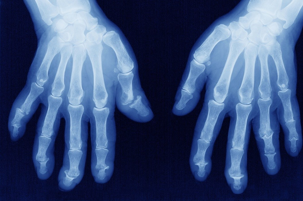 Secukinumab Improves Symptoms, Inhibits Radiographic Progression in Psoriatic Arthritis