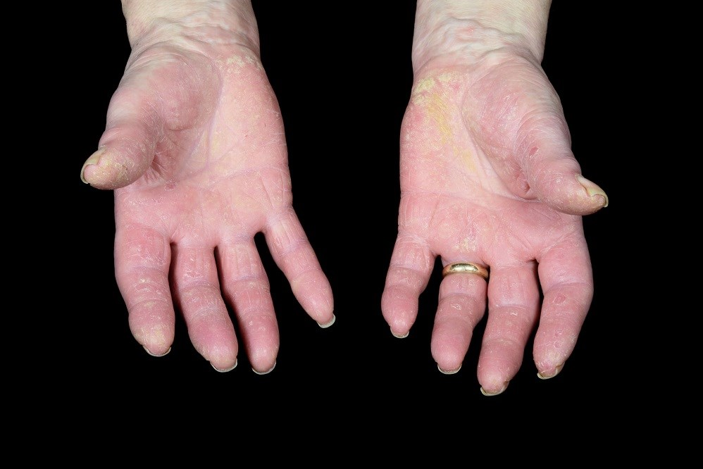 Secukinumab Administered by Autoinjector Safe, Effective in Psoriatic Arthritis