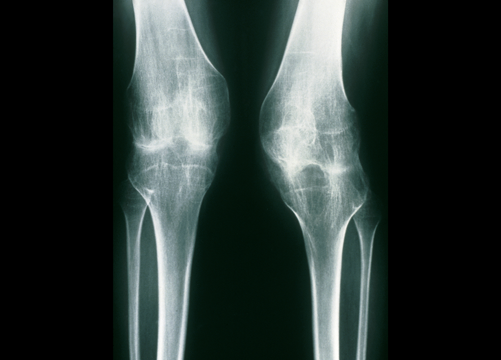 Flare Risk Examined in Juvenile Idiopathic Arthritis After Anti-TNF Therapy Discontinuation