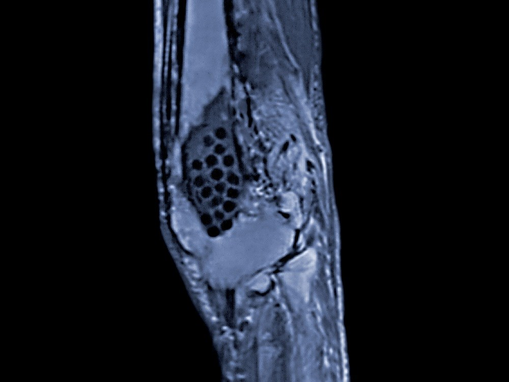 Wide Range of Clinical Manifestations Identified in Chronic Recurrent Multifocal Osteomyelitis