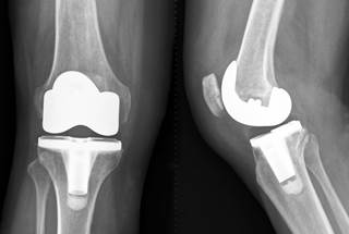 Less Pain After Tka With Addition Of Peripheral Nerve Blocks