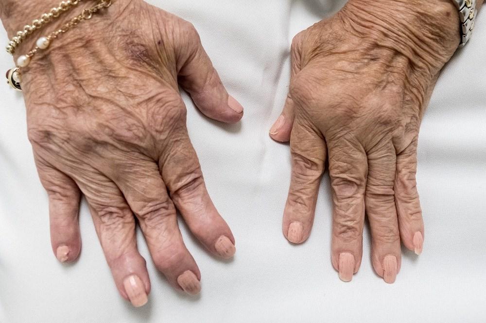 Decreased Muscle Performance Linked to Increased Disease Activity in Rheumatoid Arthritis