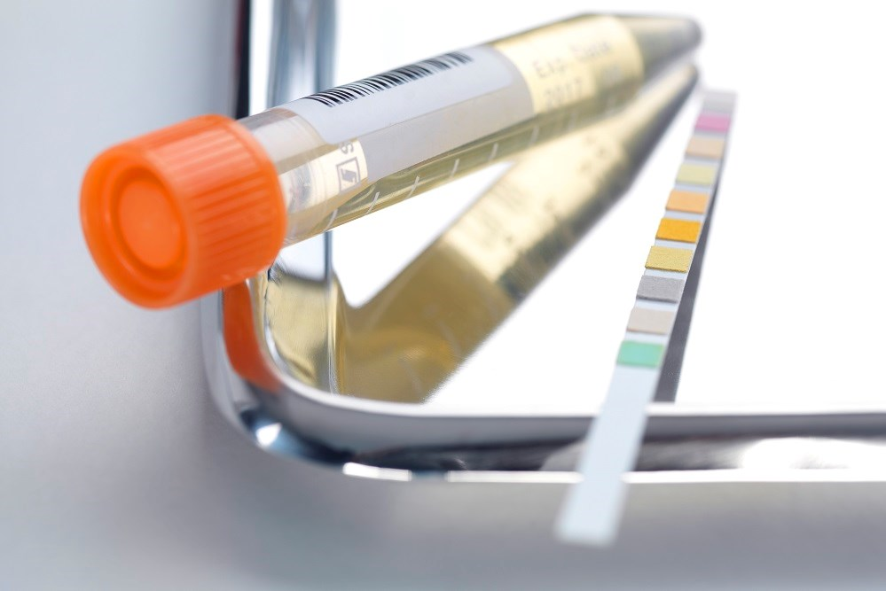 Researchers identified SERPINA3 as a potential urine biomarker to quantify lupus nephritis.