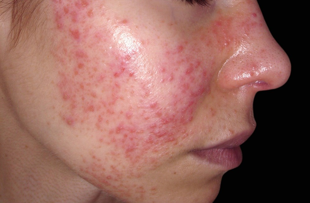 Patients with flares and active lupus may have significant concerns about lupus symptoms, medications, pain, fatigue, and emotional health. <i>Image Credit: ISM</i>