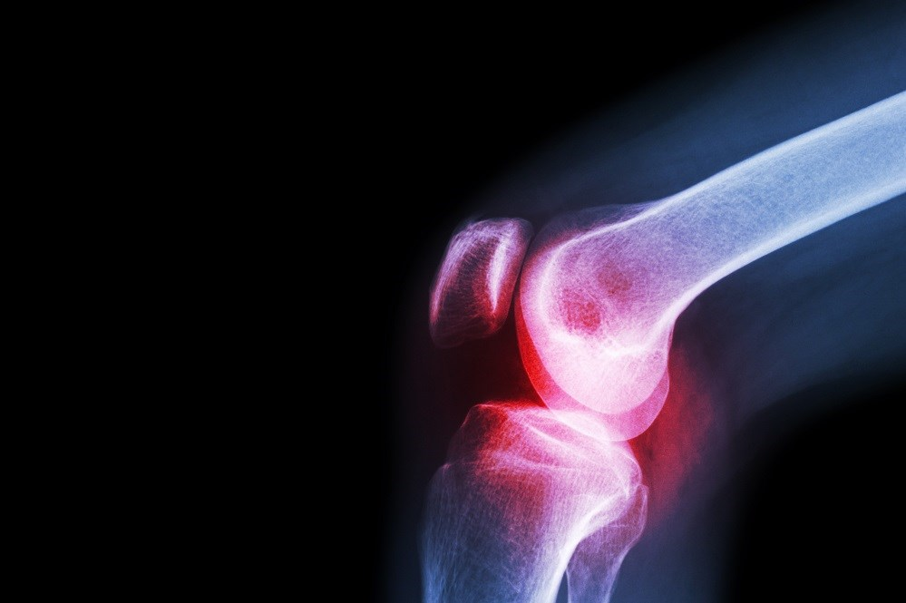Women who currently used hormone replacement therapy were at an increased risk for undergoing total knee arthroplasty.