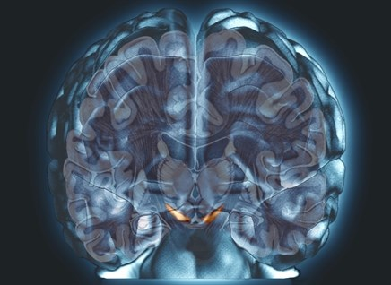 Managing Cognitive Dysfunction in Systemic Lupus Erythematosus