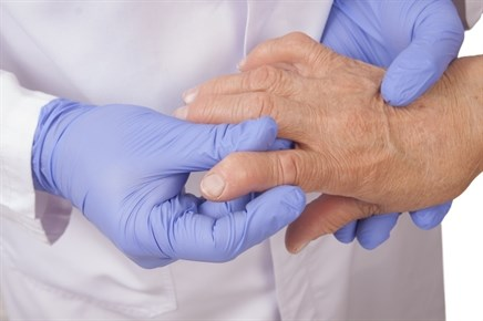 Many RA Patients' Pain Related to Central Nervous System