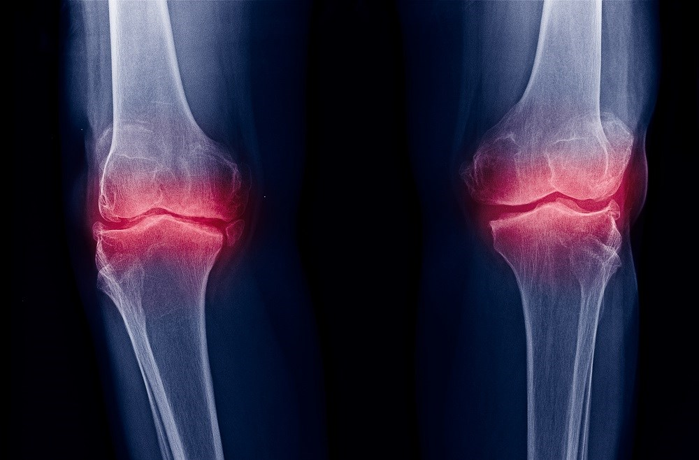 Radiographic Changes of Osteoarthritis Associated With Persistent Knee Pain