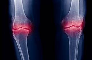 radiographic changes of osteoarthritis associated with persistent
