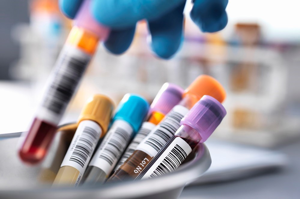 Erythrocyte-Bound C4d May Be Useful for SLE Disease Monitoring