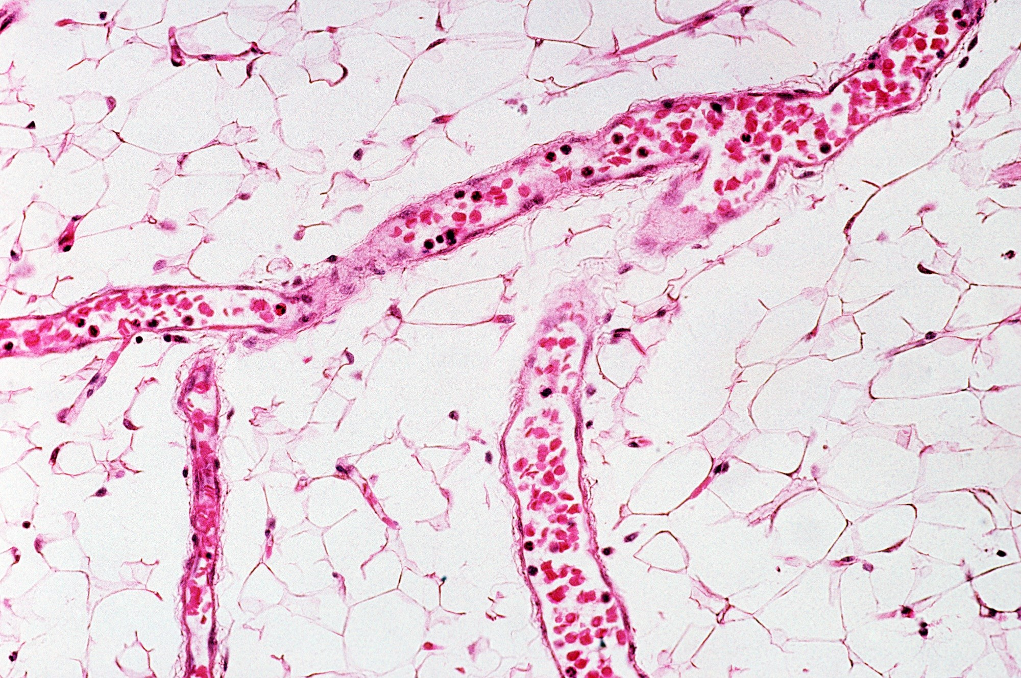 Low Nailfold Capillary Density Associated With Lung Involvement in Juvenile Dermatomyositis