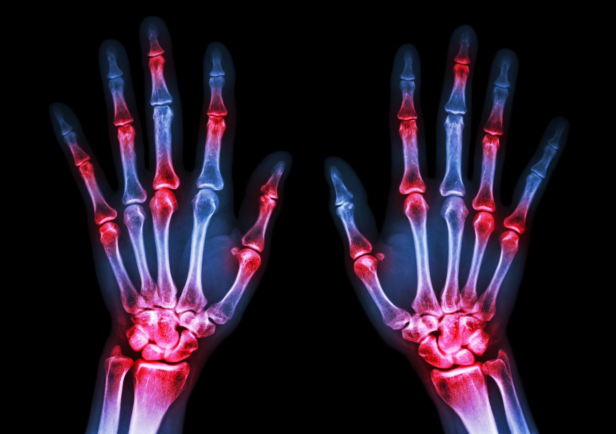 Novel JAK Inhibitor Peficitinib Effective, Tolerable in Treating Rheumatoid Arthritis