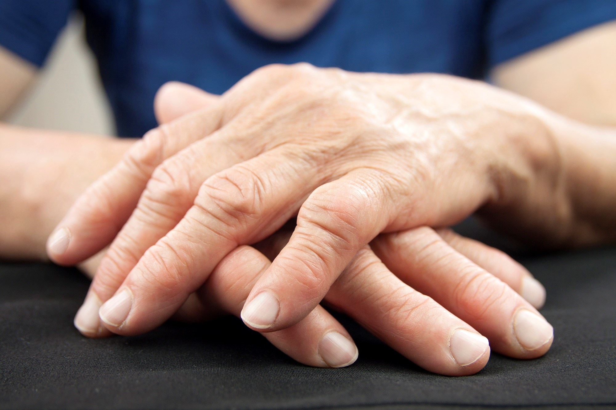 Prevalence of Arthritis in Adults With Prediabetes
