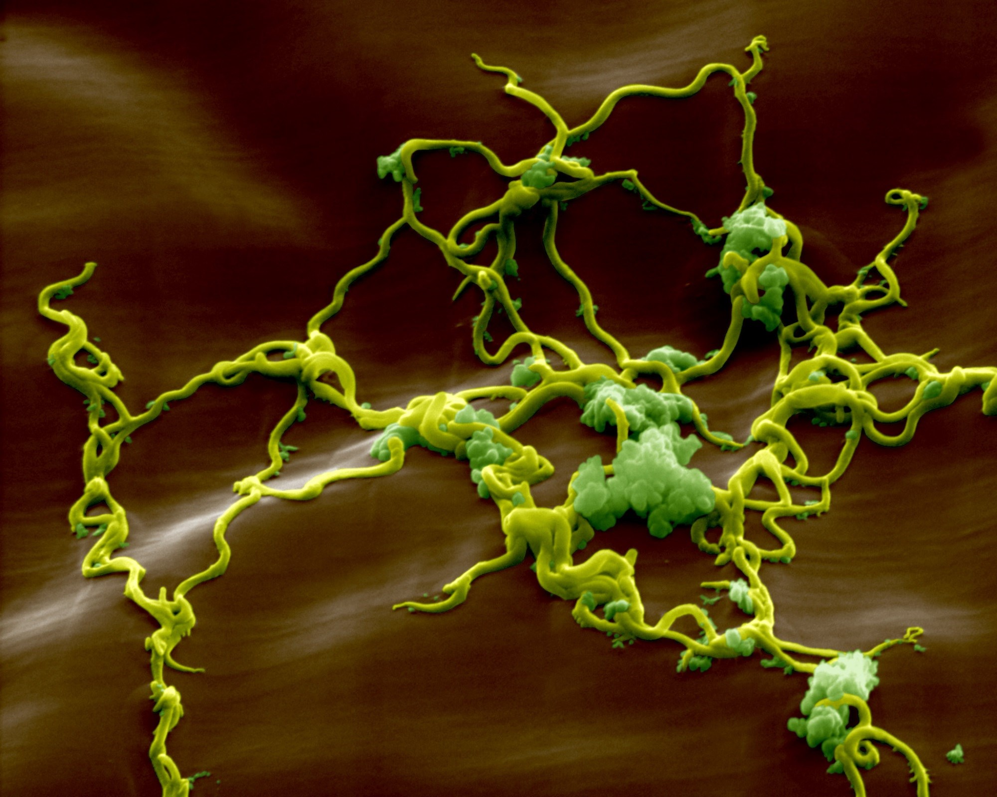 Diagnosing Lyme Disease in Children With Neuropsychiatric Illness