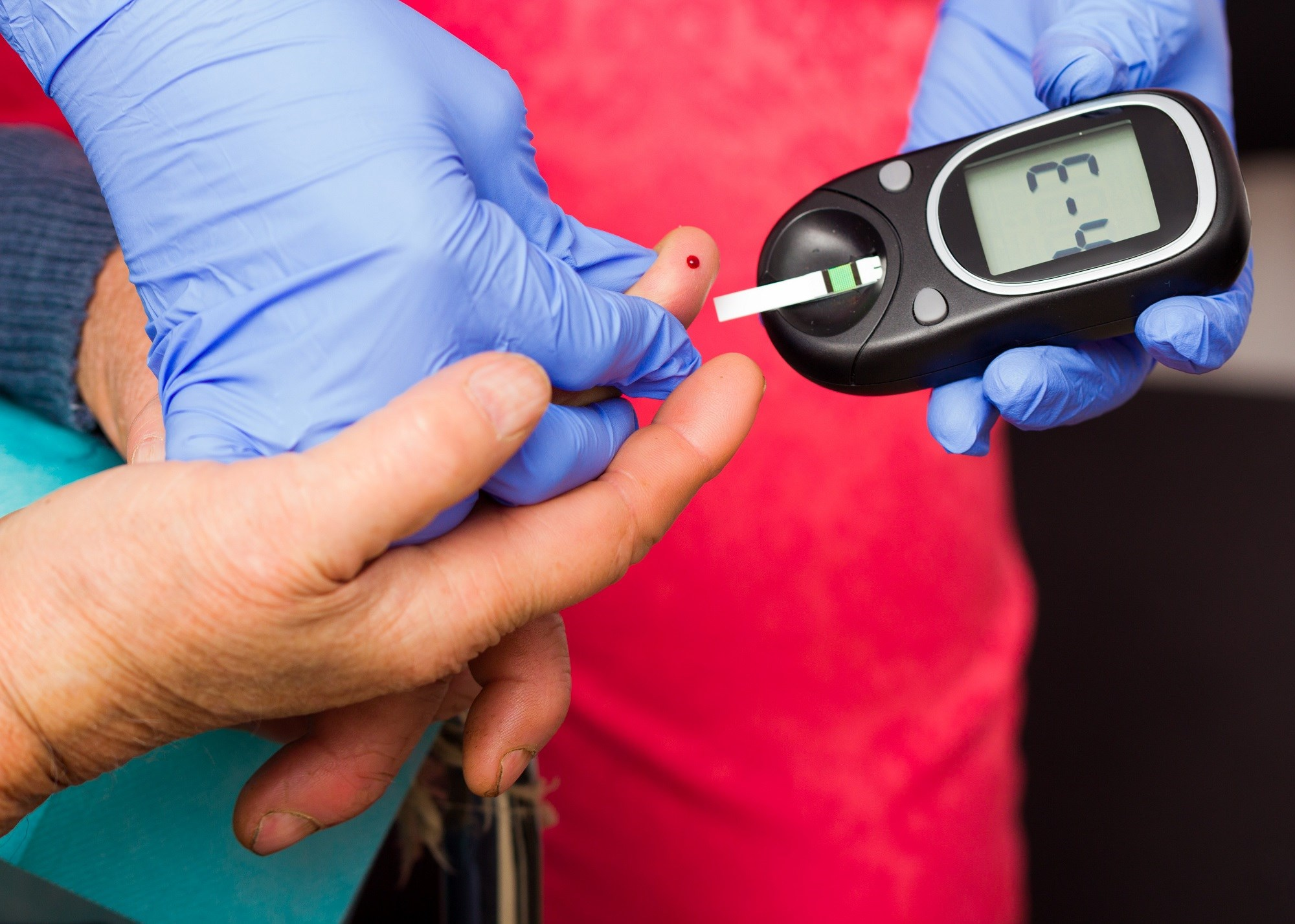 Diabetes Screening Rates Suboptimal Among Patients With Rheumatoid Arthritis