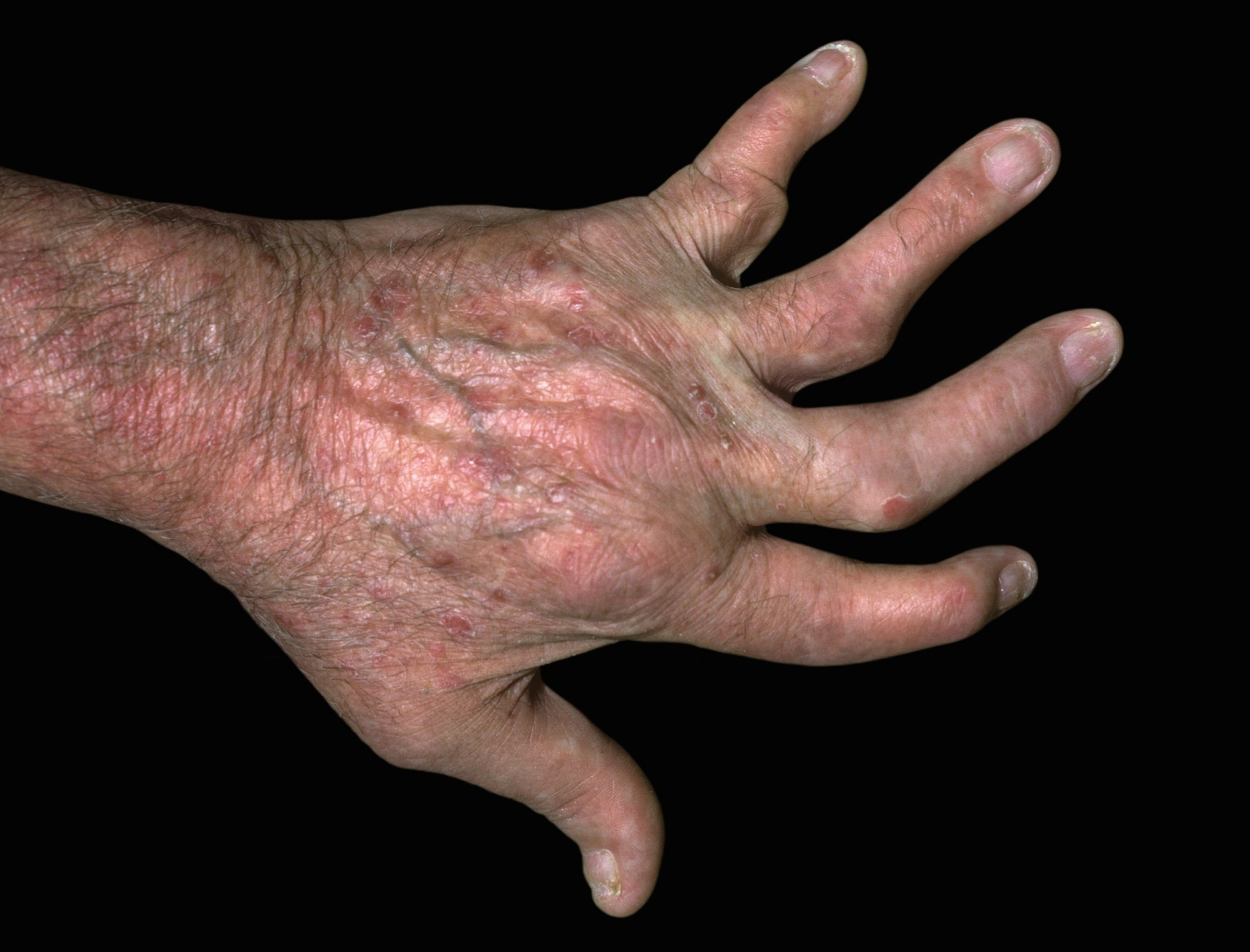 Minimal Disease Activity Provides Valid Assessment of Adalimumab-Treated Psoriatic Arthritis