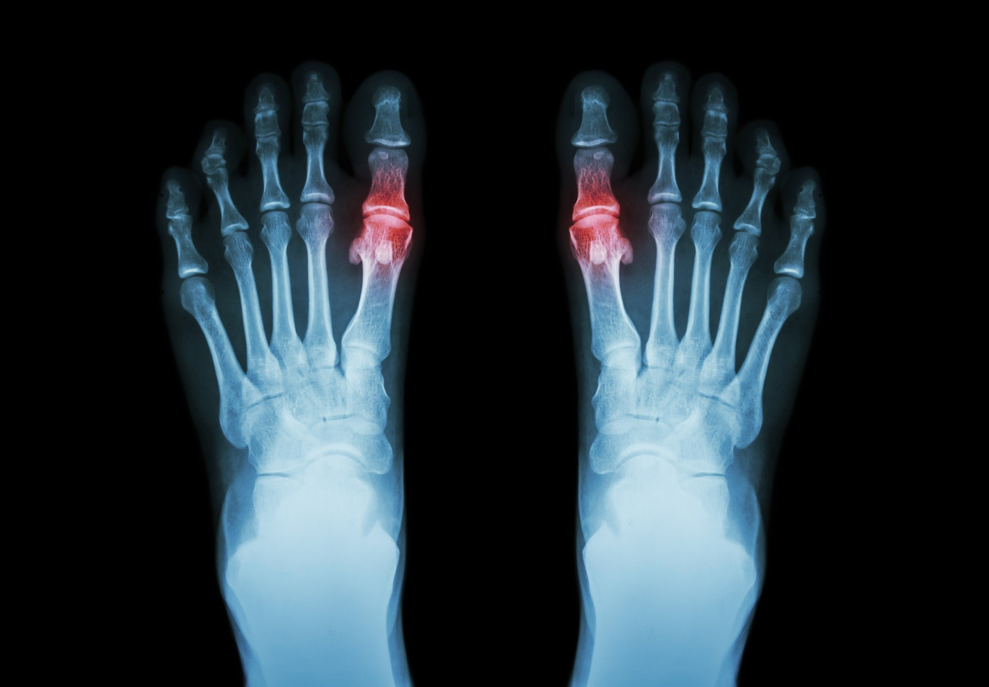 Patients With Early-Onset Gout Develop Earlier Metabolic Comorbidities, Severe Joint Involvement