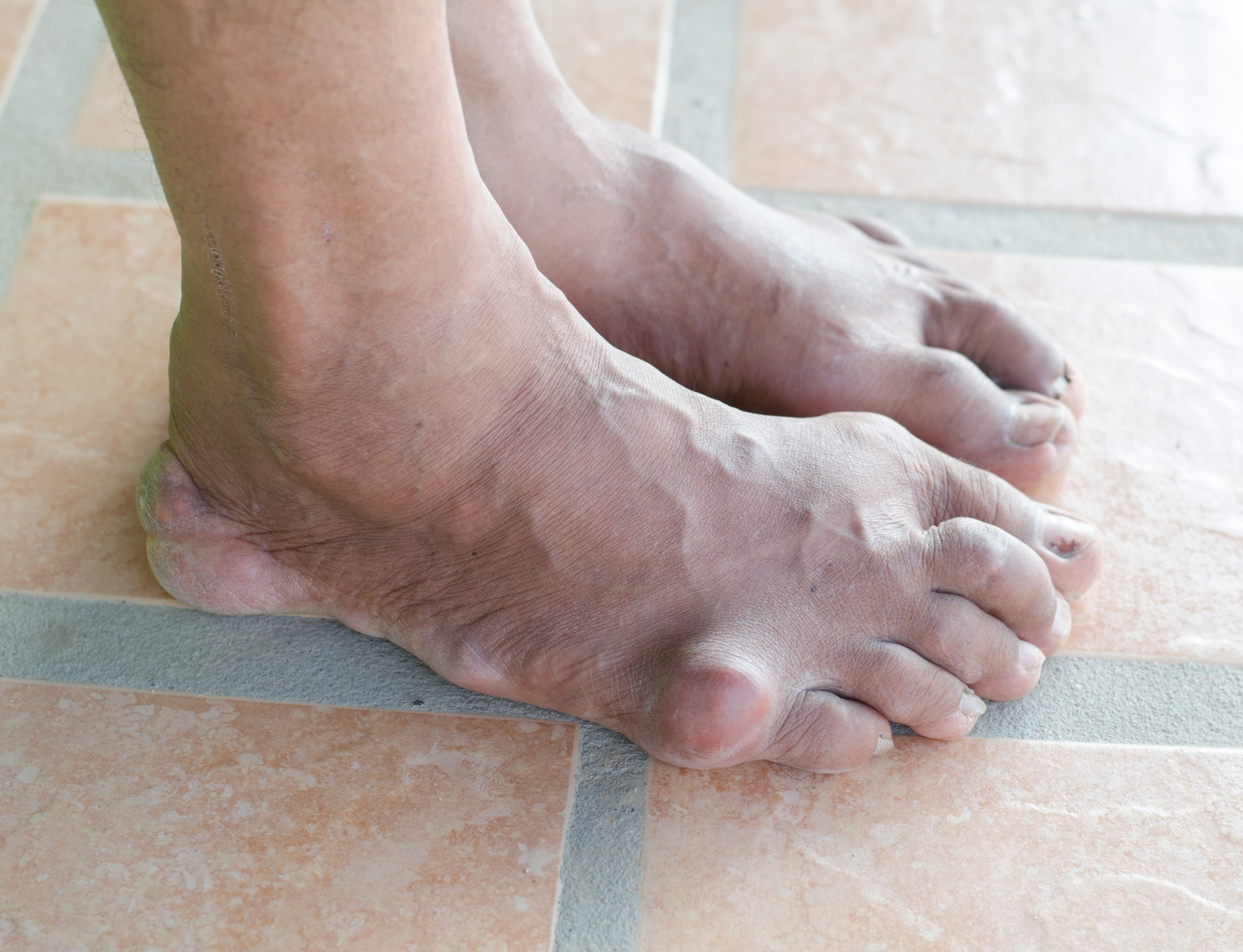 Ultrasound Reveals Decreased Urate Deposits After Urate-Lowering Therapy in Gout
