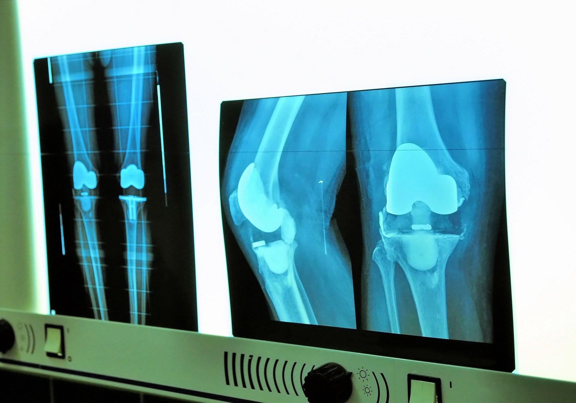 Pain Scores After Total Knee Arthroplasty May Predict Chronic Opioid Use