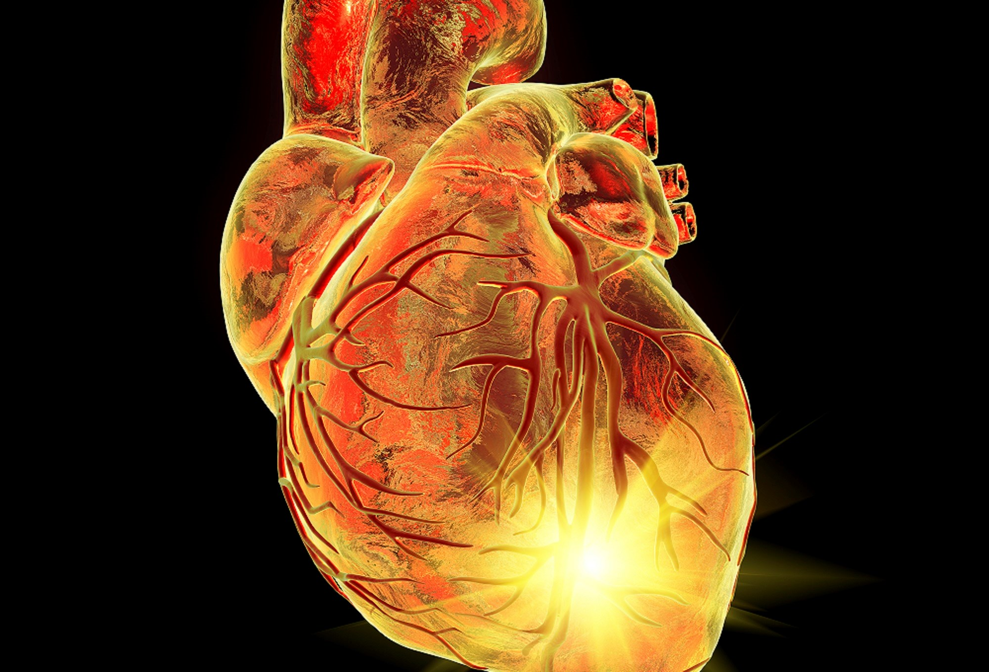 Subclinical Myocardial Inflammation Common in Rheumatoid Arthritis