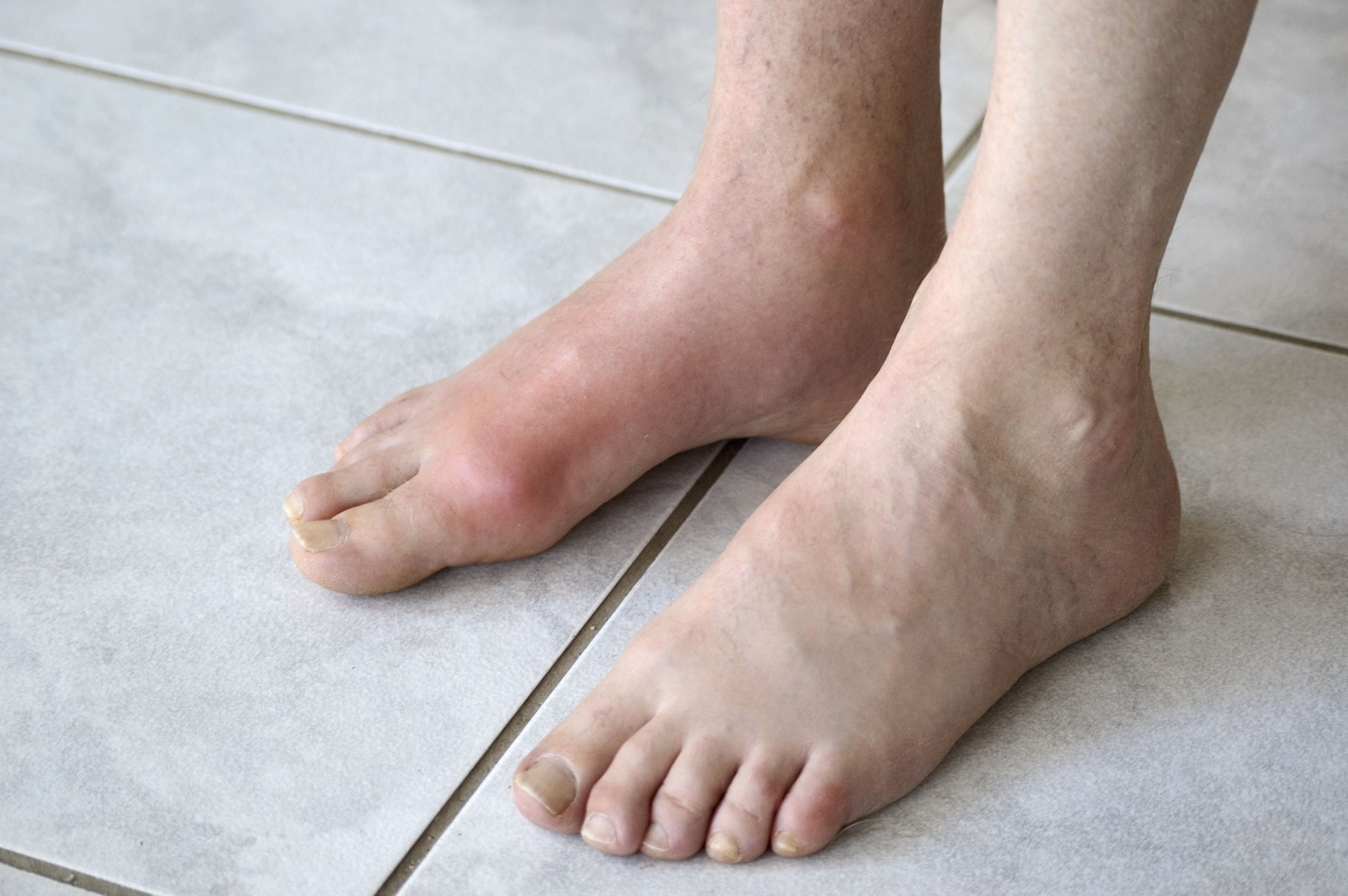 Factors Associated With Bone Erosion Identified in Gout