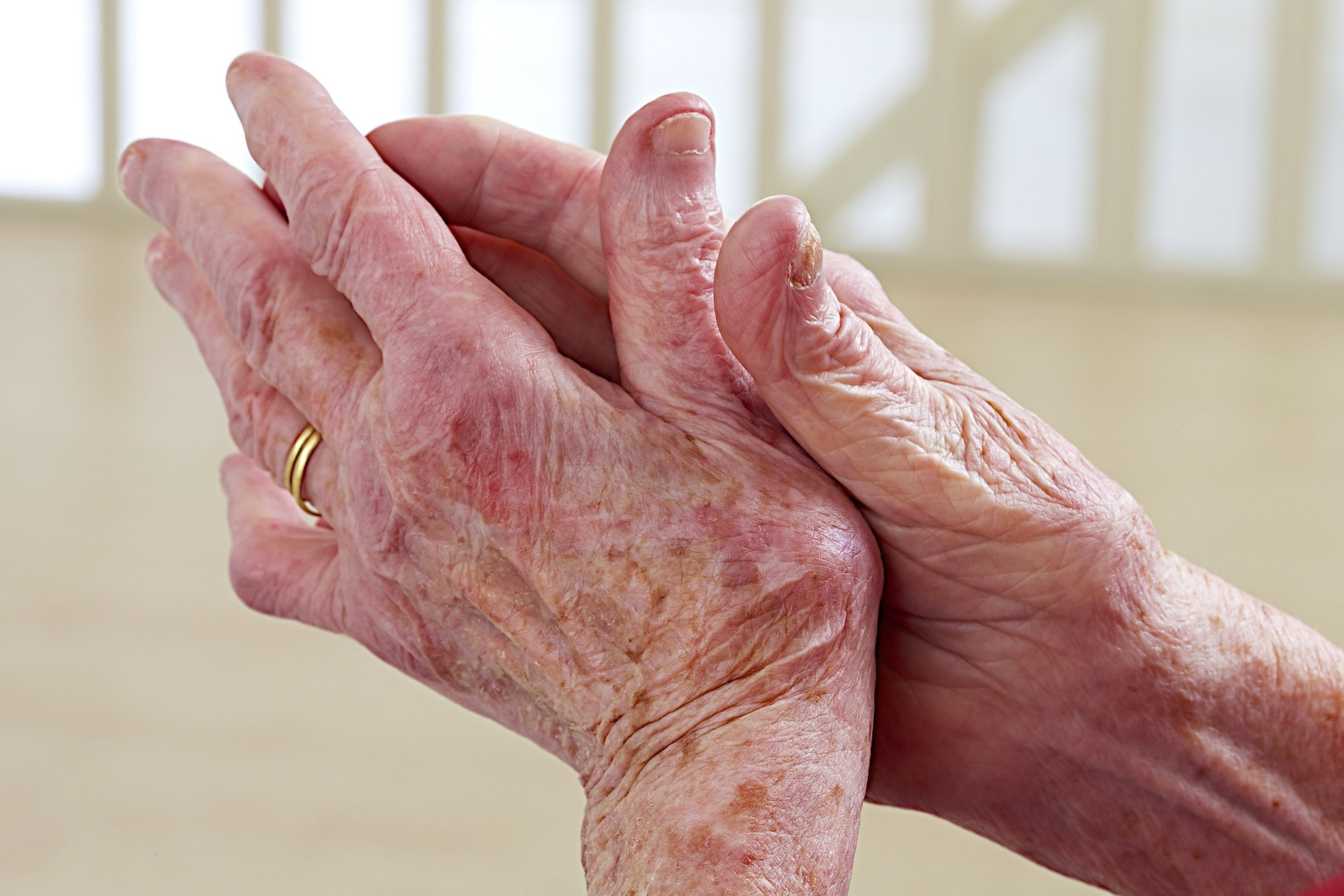 The task force has issued 10 updated recommendations for the management of hand osteoarthritis.