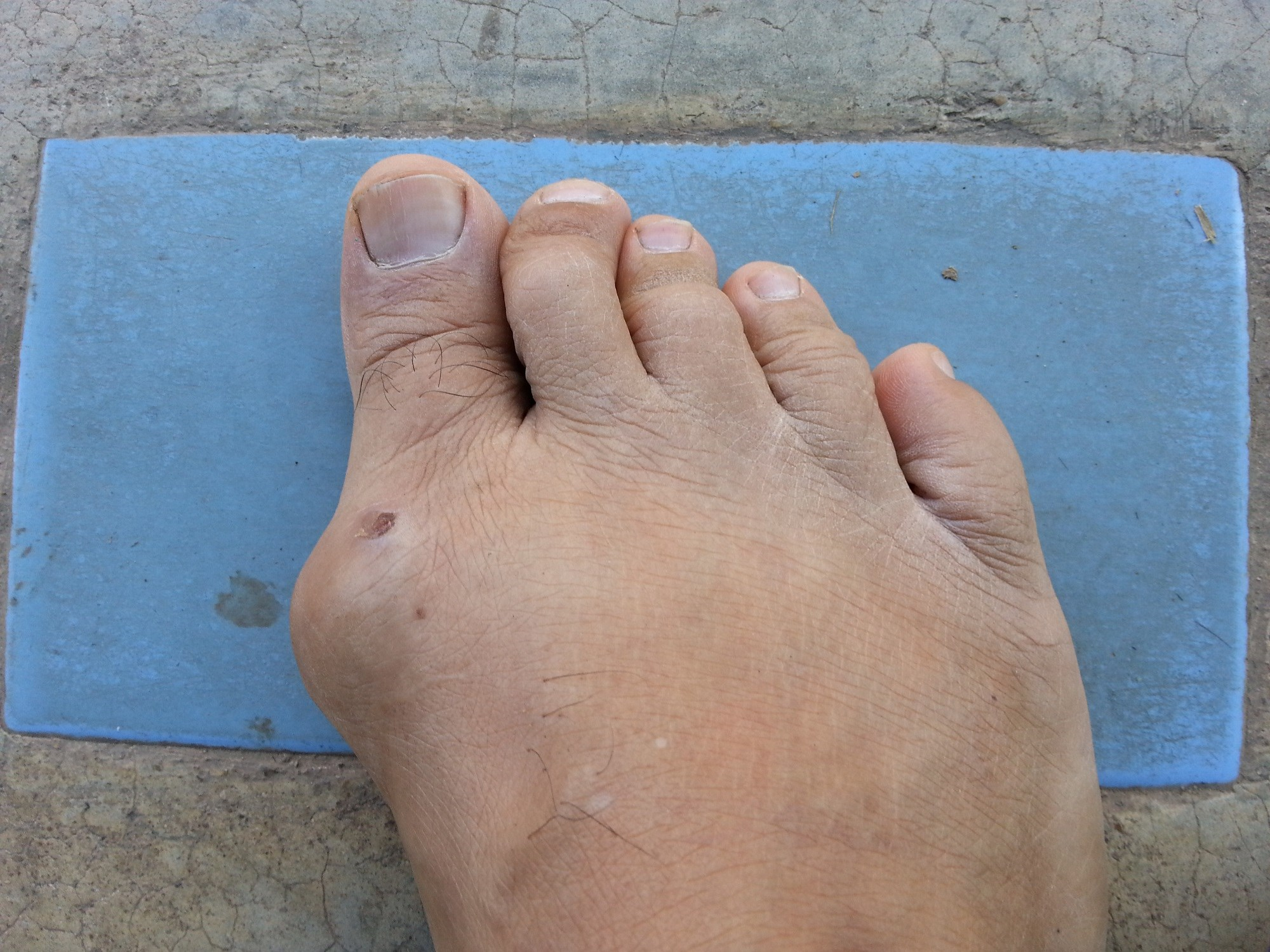 Long-Term Safety Data Raise No New Concerns for Approved Lesinurad Dose in Gout