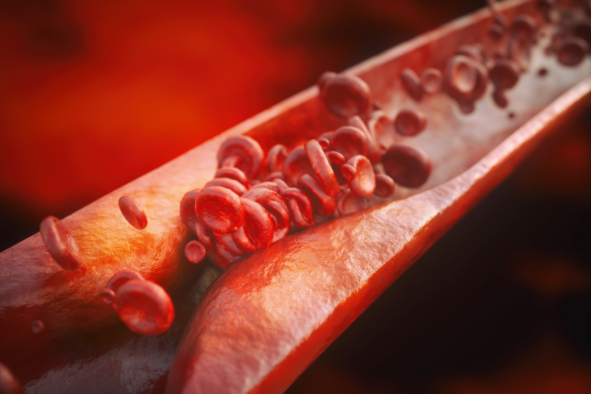 With higher plasma estradiol levels, atherosclerosis progression is decreased among early postmenopausal women and is increased among late postmenopausal women.