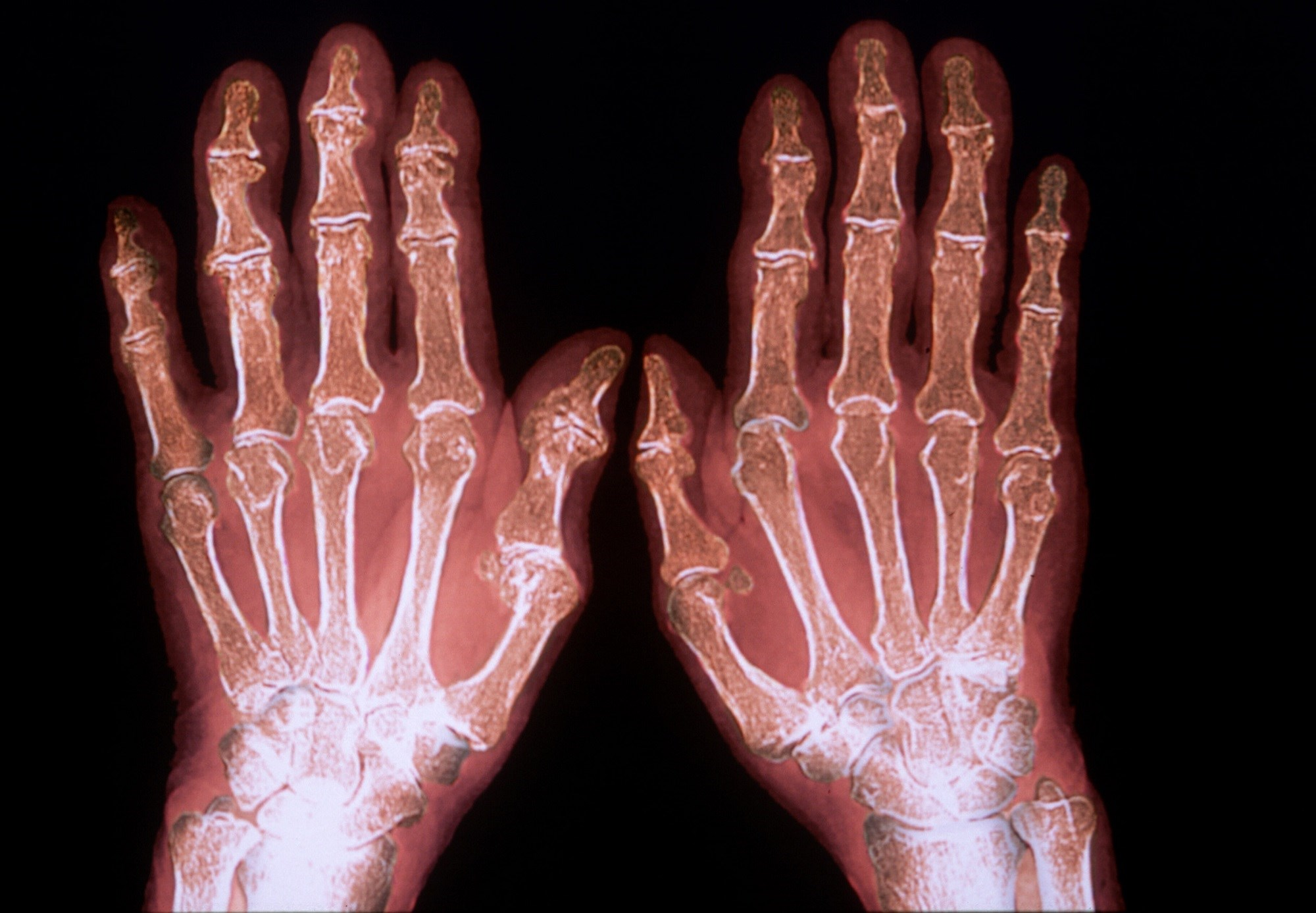 Targeting Remission vs Low Disease Activity in Rheumatoid Arthritis
