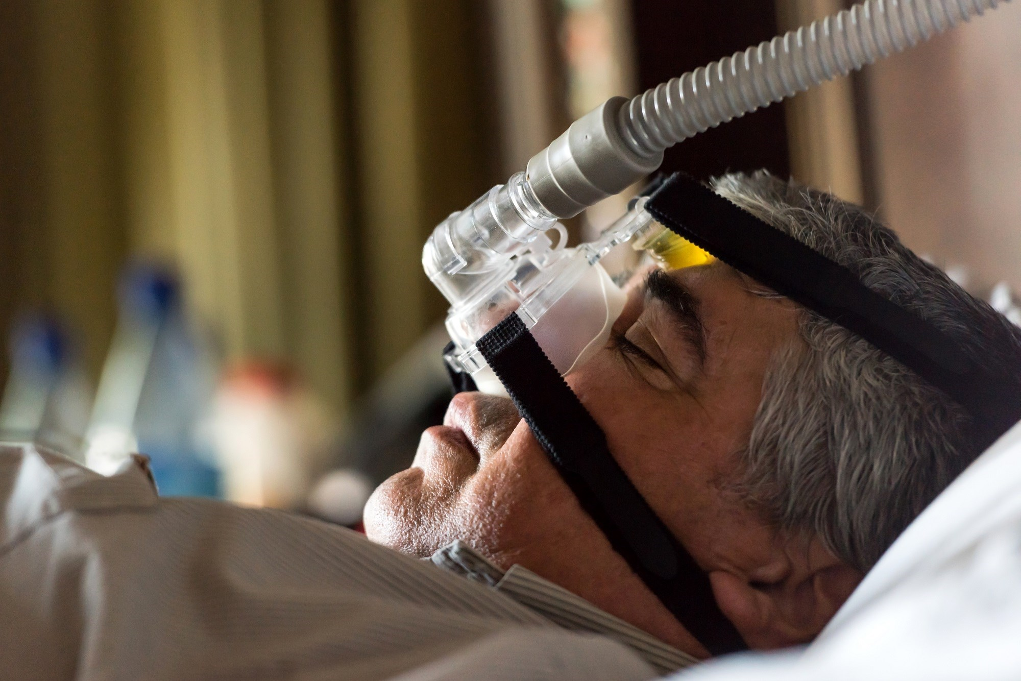 Patients With Obstructive Sleep Apnea Have Increased Risk for Gout