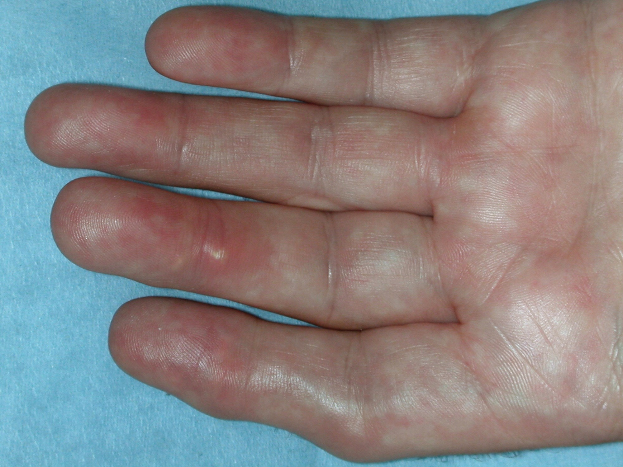 Clinical Gout-Related Benefits Not Demonstrated With Lesinurad Combination Therapy