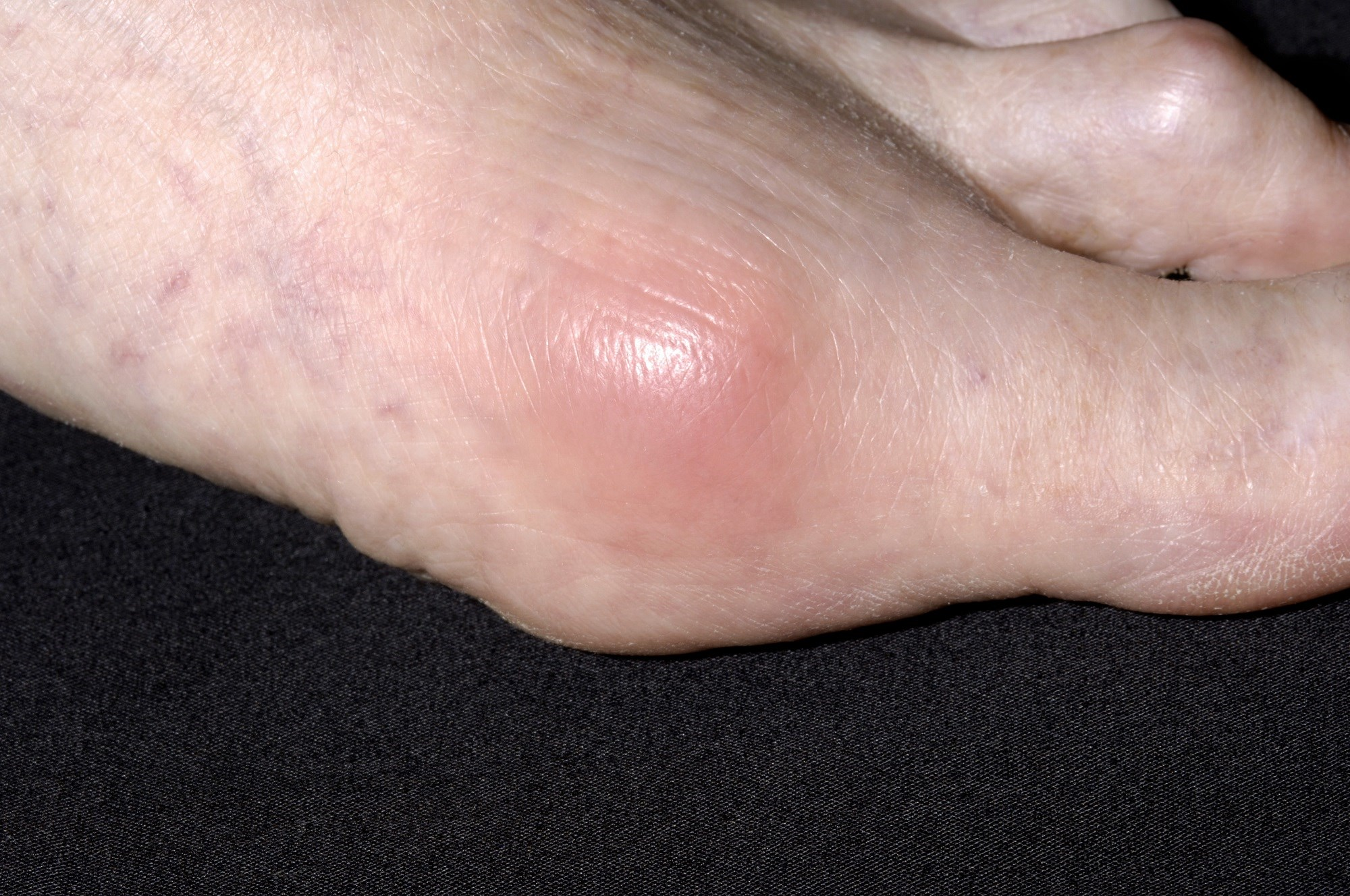 The risk of developing gout in patients with OSA was highest 1 to 2 years after the index date.